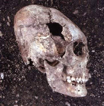 Deformed skull by bandage in youth